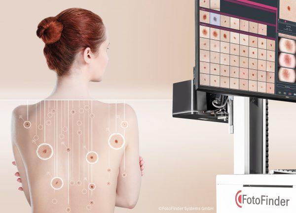 """""""FotoFinder"""" pristato naujos kartos sistemas ankstyvam odos vėžio nustatymui"""