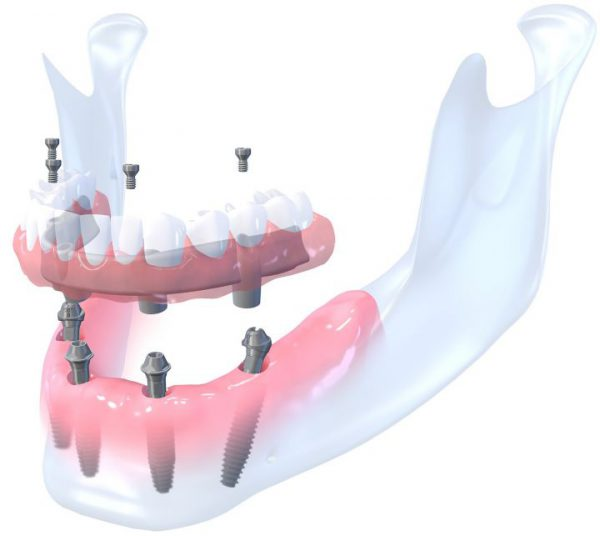 Šiandieninės dantų atkūrimo galimybės